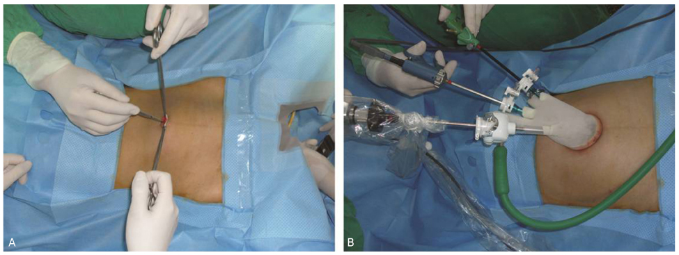 Single Site Laparoscopic Radical Hysterectomy Using Conventional Ports and Instruments