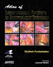 Atlas of Minimal Access Surgery in Oesophageal Cancer